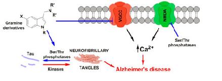 Alzheimer-400